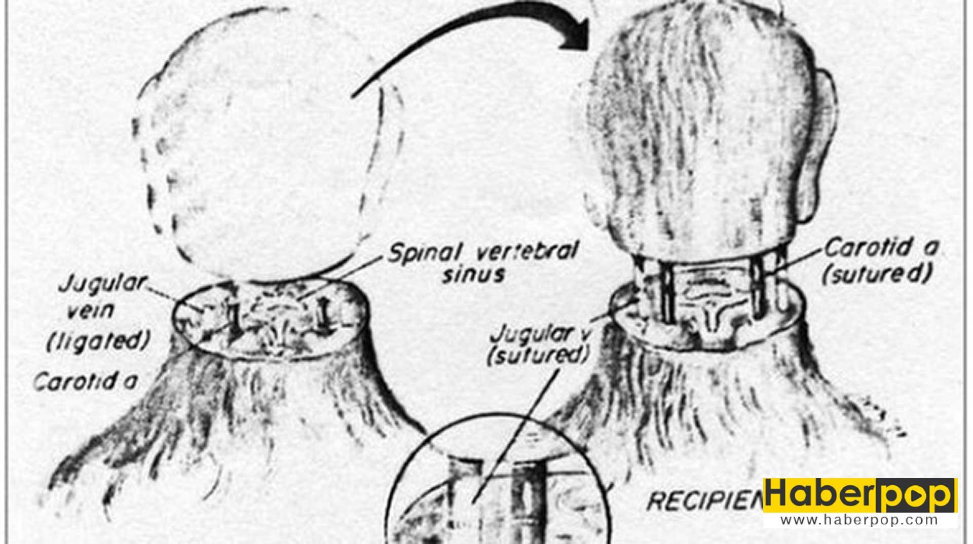 dunyanin-ilk-kafa-nakli-icin-gonullu-bulundu-valery-spiridonov-sergio-canavero-ilginc
