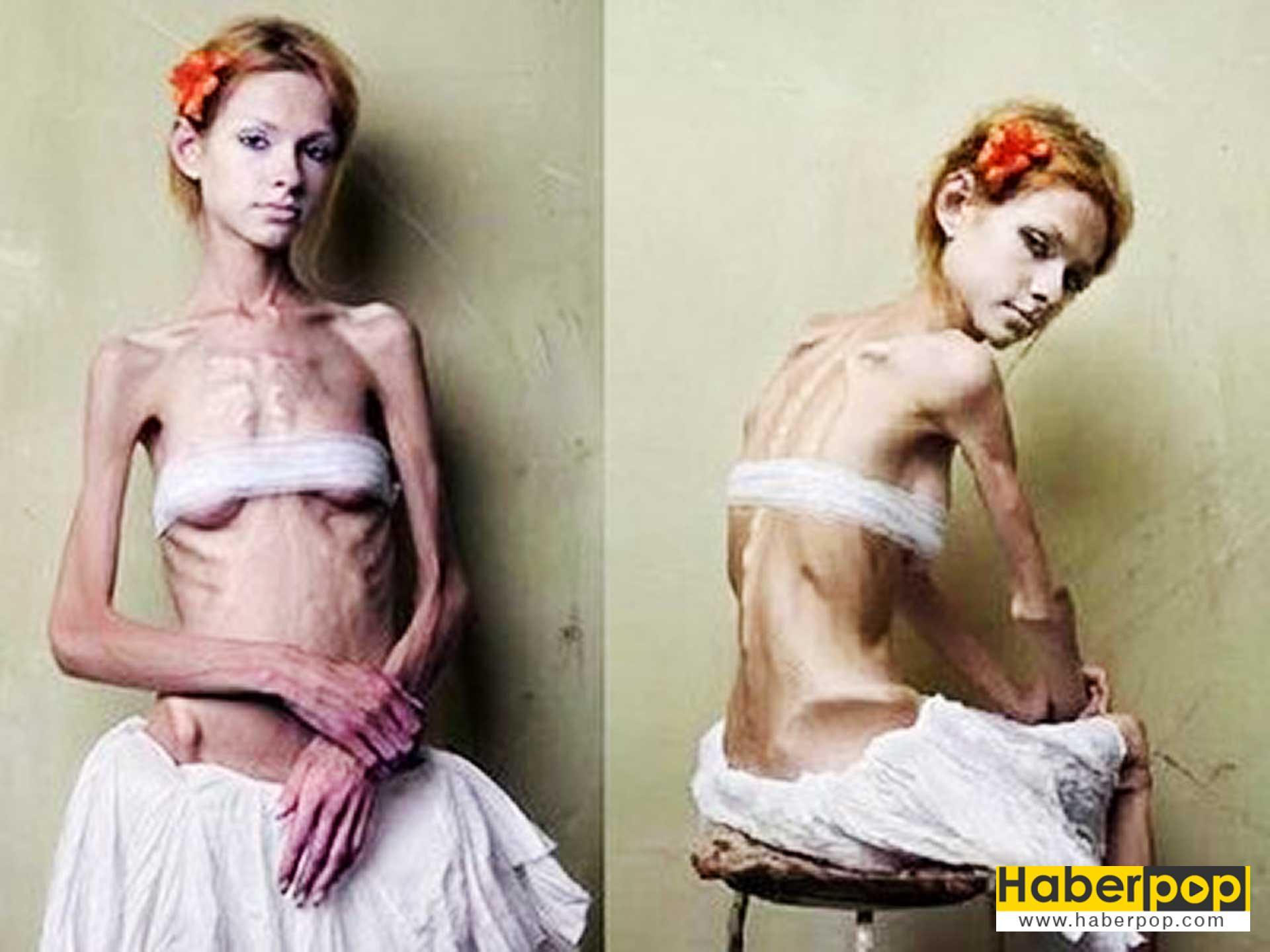 anoreksi-anoreksiya